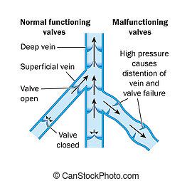 Vein valves - Normal and malfunctioning vein valves -- ...