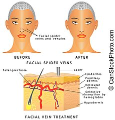 Veins on face - Veins on the face. Typical thread veins on...
