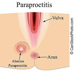 vektor, abszess, paraproctitis., abbildung, entzündung, freigestellt, hintergrund., infographics., perineum.