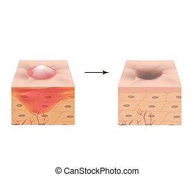 vektor, bakgrund., illustration, pimple., skin., akne, scar...