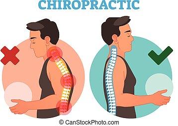 vektor, begrebsmæssig, curvature., bone tilbage, kiropraktik, illustration
