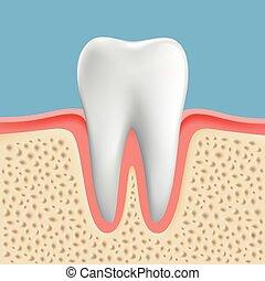 vektor, image, i, en, menneske, tand, hos, caries