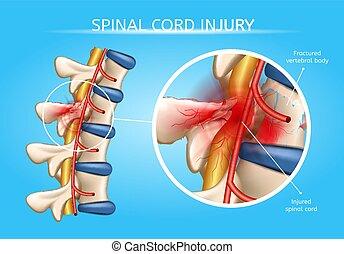 vektor, menschliche , schnur, spinal, anatomisch, schema, ...