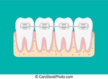 vektor, tænder, afstivninger, lejlighed, illustration