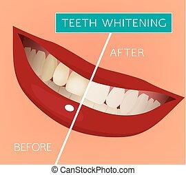 vektor, tænder, whitening