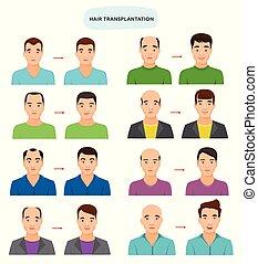 velu, ensemble, chauve, personne, haircat, chevelure, transplantation, après, caractère, isolé, illustration, cheveux, hairloss, vecteur, mâle, fond, blanc, homme, chauve, calvitie, transplantation