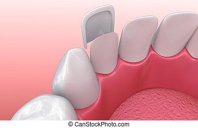 veneers:, dentaire, procedure., installation, porcelaine, illustration, placage, 3d