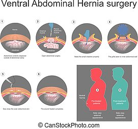 Ventral hernia is a bulge of tissues through an opening of...