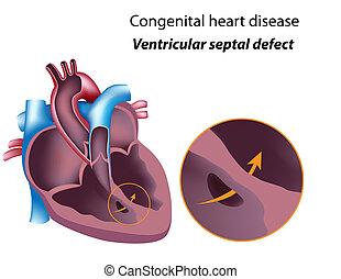 ventriculaire, eps8, septal, défaut