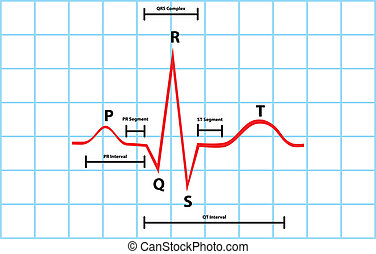 ventricular, diagrama, atrial
