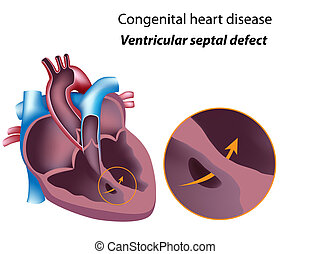 Ventricular septal defect, eps8 - Congenital heart disease:...
