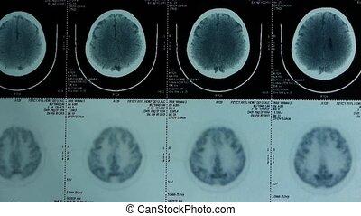 verhuizing, hoofd, aanhalen, ct onderzoekende blik, hersenen