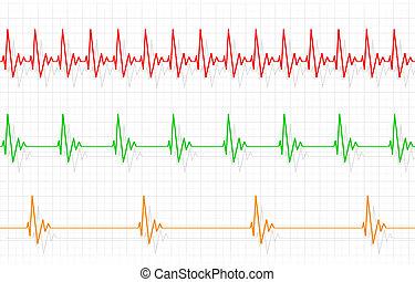 verschieden, heartbeats, abbildung