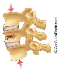 vertebral, samendrukking, breuk