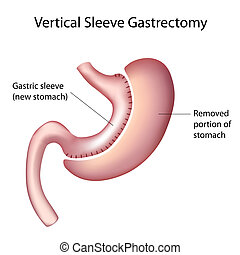 Vertical Sleeve Gastrectomy, eps8 - Vertical Sleeve...