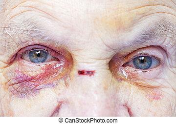 verwonde vrouw, bejaarden