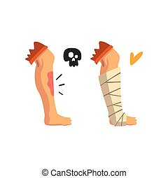 Physische verletzung Clipart Vektor und Illustration. 2 ...