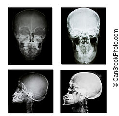 verzameling, van, rontgen, (head, rontgen, image)