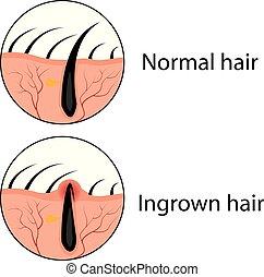 vettore, capelli, normale, ingrown, illustrazione