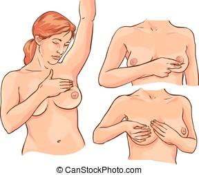 vettore, esame, illustrazione, cancro, seno