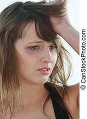Abused girl over white background