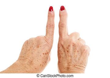 viejo, mujer, manos, deformado, de, artritis reumatoidea