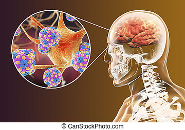 Viral encephalitis, brain and neurons infected by viruses