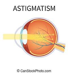 vision., vista, astigmatism., problema, obscurecido