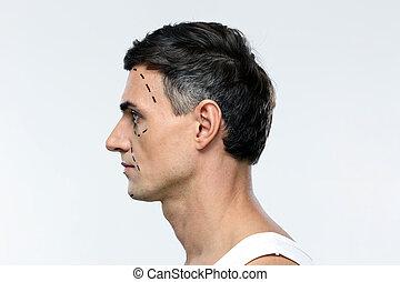 vista laterale, ritratto, di, uno, uomo, marcato, con, linee, per, chirurgia plastica