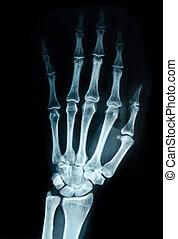 vista., radiografía, mano