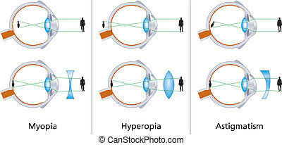 Visual Defects - Illustration of the three visual defects...