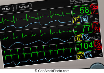 Patient's vital signs on ICU monitor closeup