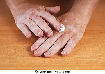 Vitiligo - applying sunblocker or lotion to skin affected by...