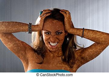 Vitiligo Skin Condition - A woman posing with a medical skin...