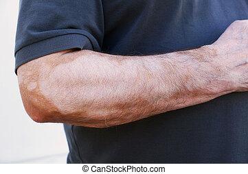 Vitiligo is a medical condition causing depigmentation of...
