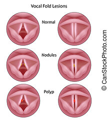 Vocal cord lesions, eps8 - Larynx nodules and polys, eps8