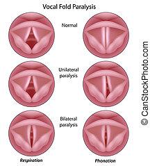 Vocal fold paralysis, eps8