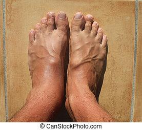 voetjes, kapot, enkel, mens