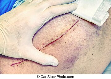 vorgewählter fokus, von, altes , menschliches bein, mit, scar., patient, mit, langer, narbe