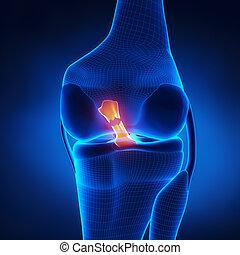 vorhergehend, zerrissene , cruciate, ligament