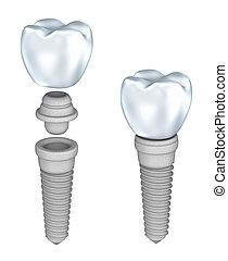 vrijstaand, dentaal, witte , implantaat