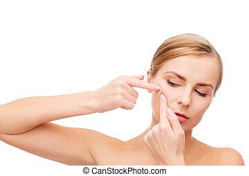 vrouw, acne, het presen, jonge, stippen