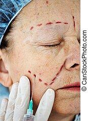 vrouw, krijgen, bejaarden, injectie, botox, procedure