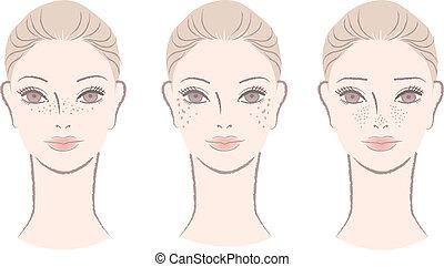 vrouw, met, freckles, levervlekken