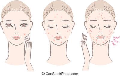 vrouw, met, saai, pimples