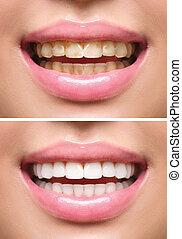 vrouw, teeth, vóór en na, whitening., mondelinge zorg