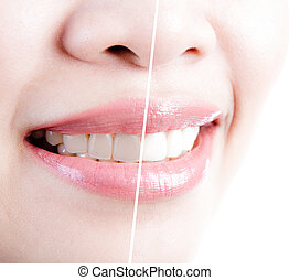 vrouw, teeth, vóór en na, whitening., op, witte achtergrond
