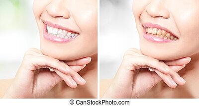 vrouw, teeth, vóór en na, whitening