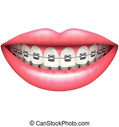 vrouw, vrijstaand, vector, teeth, glimlachen, witte ,...
