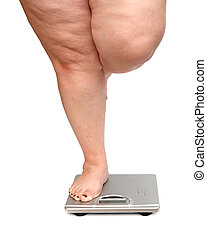 vrouwen, benen, met, overgewicht